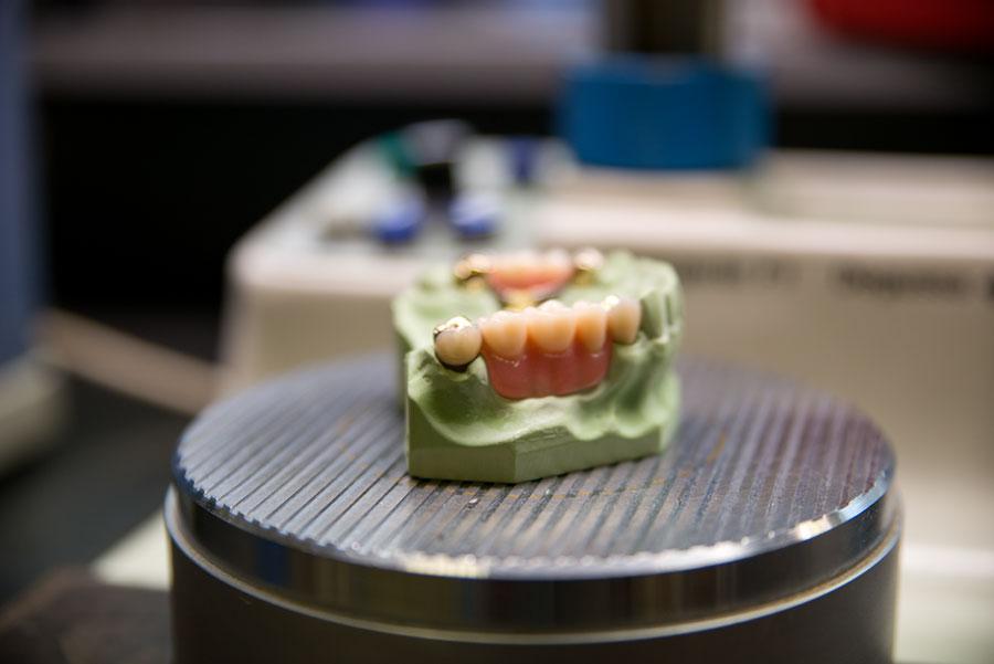 Zahnersatz Zahnarzt Augsburg